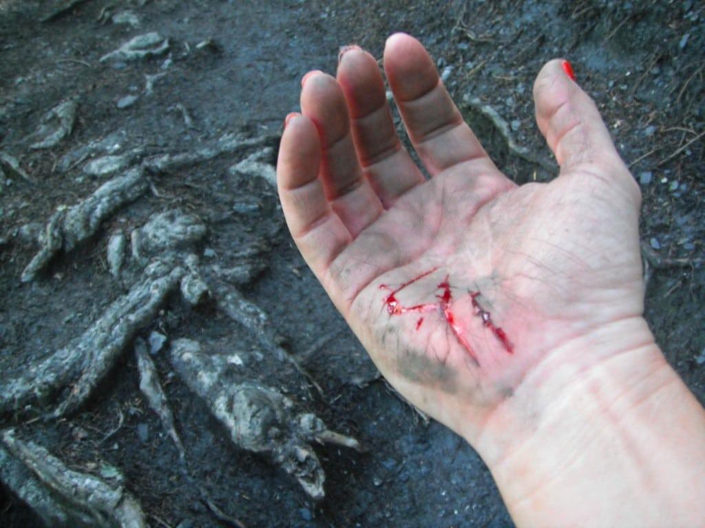 Mont Blanc Marathon hazards